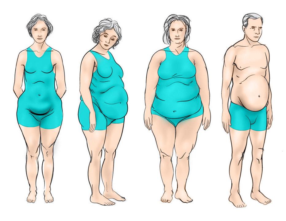 Obesity - charlotte hormone imbalance treatment
