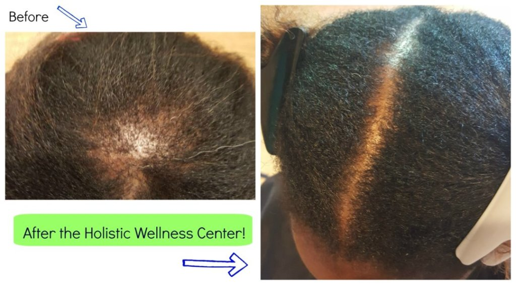 Holistic Wellness Center - Hair