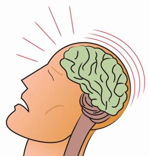 Brain Injury - migraine treatment in charlotte