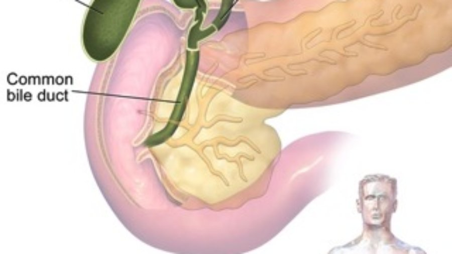 Gallbladder - charlotte diabetes treatment