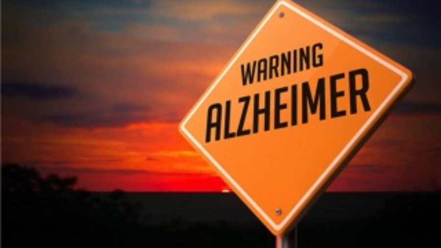 Alzheimers - hormone imbalance treatment in charlotte