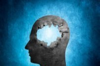 """How a """"leaky brain"""" raises your risk of dementia"""