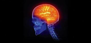 Brain Inflammation - charlotte brain inflammation treatment