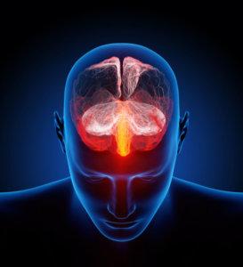Charlotte Brain Inflammation treatment