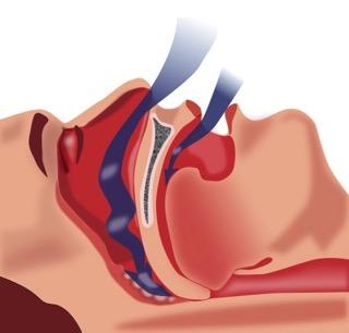 707 throat exercises snoring