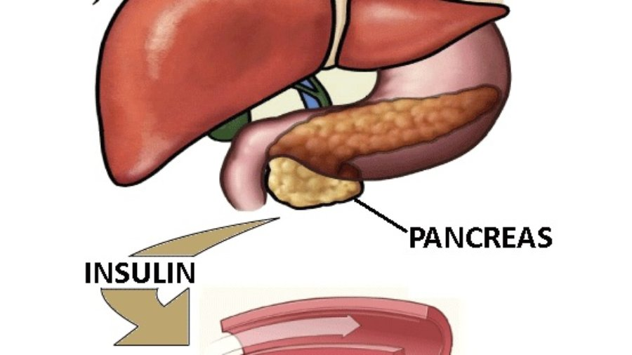 Pancreas, Insulin, Blood Sugar - charlotte autoimmune disorder treatment