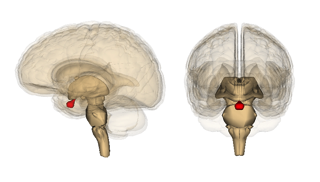 Brain Images - brain inflammation treatment in charlotte