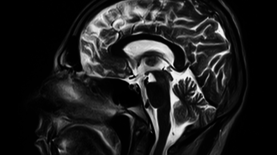 X-ray of Brain - inflammation treatment in charlotte