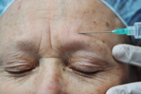 Studies show botox injections impact the brain