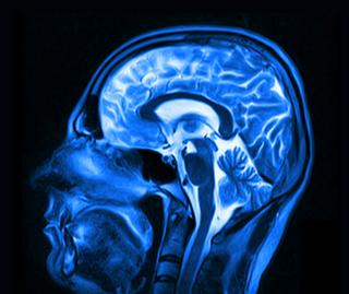 Brain X-Ray - brain inflammation treatment in charlotte